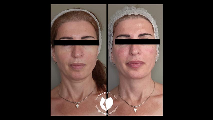 Hyalu-Botox