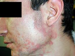 Σμηγματορροϊκή Δερματίτιδα (Πιτυρίδα)